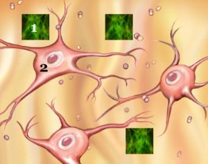 Représentation schématique de plaques formées de dépôts de protéines amyloïdes (1) s'agglutinant à l'extérieur des neurones (2)