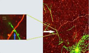 synapse_axo-dendritique