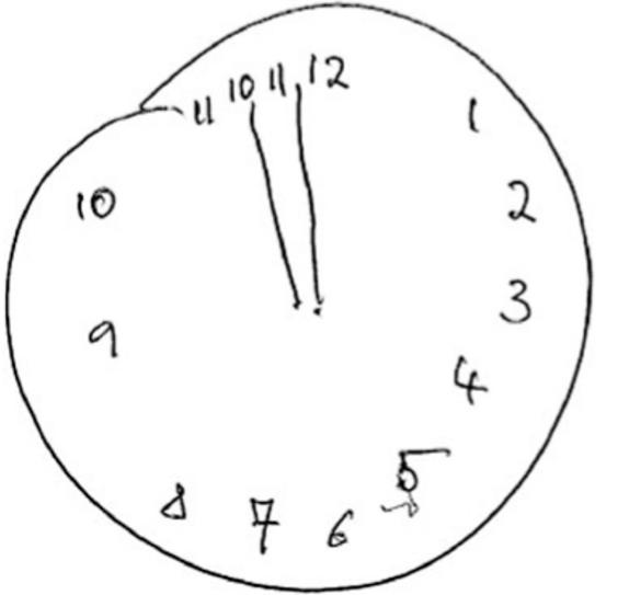 Test de l'horloge, un des tests qui évaluent les troubles cognitifs