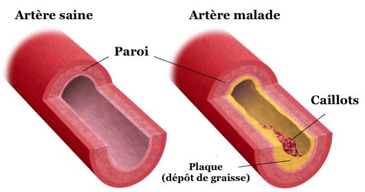 artere-carotide