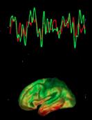 EEG_IRM