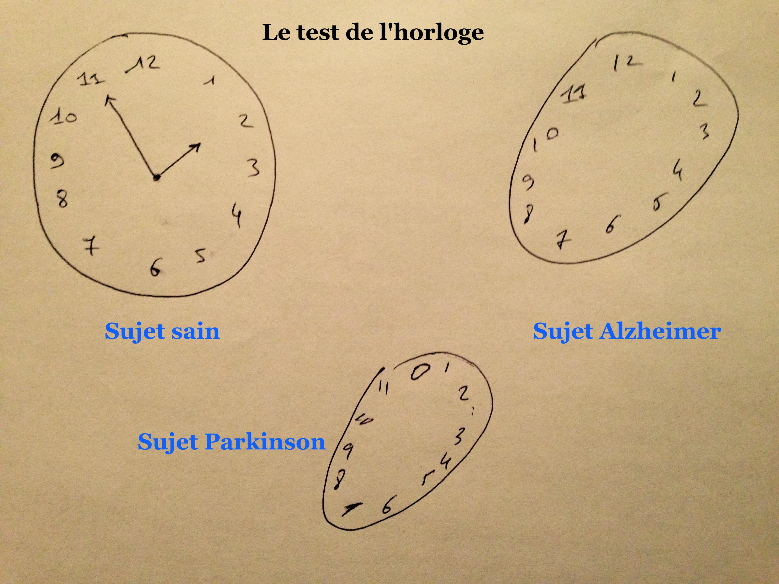 test horloge alzheimer
