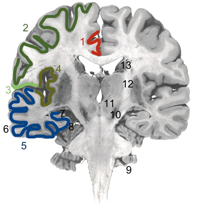 cerveau reptilien définition